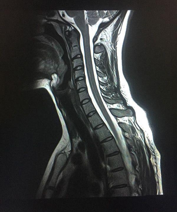 МРТ шейного отдела позвоночника - с контрастом