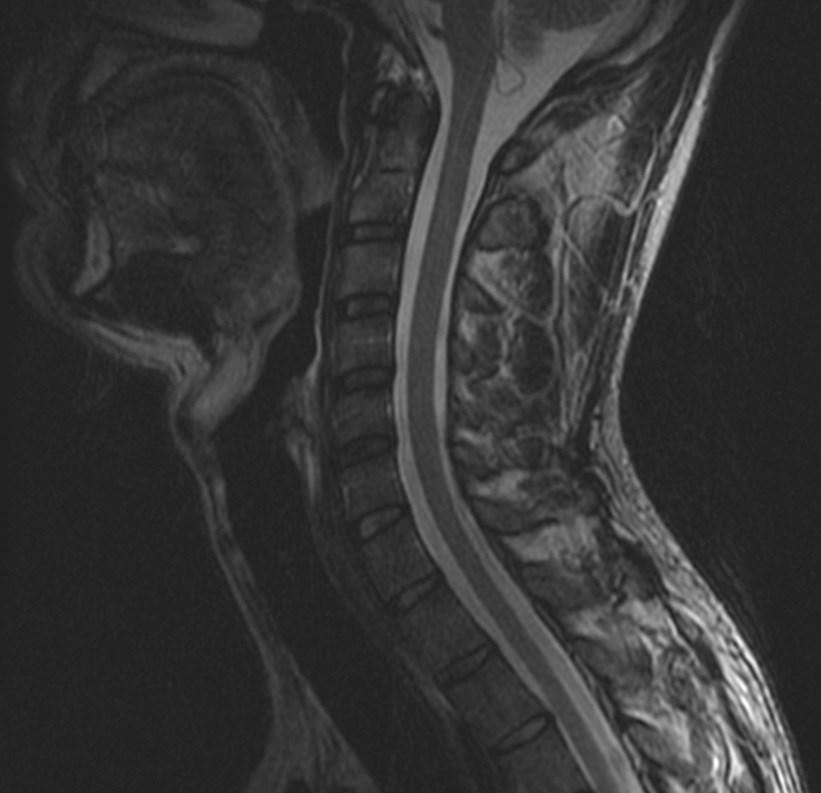 МРТ шейного отдела позвоночника - без контраста