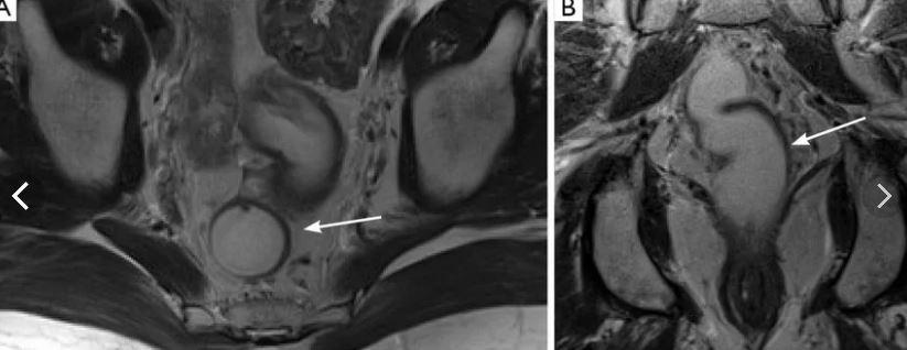 МРТ тонкого и толстого кишечника - без контраста