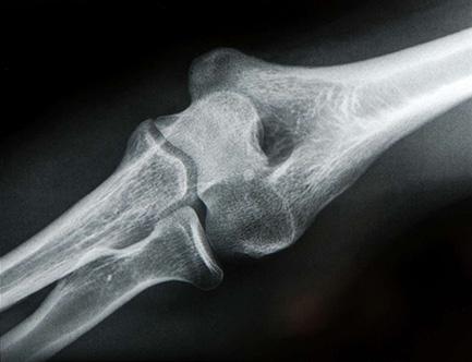 рентген.jpg