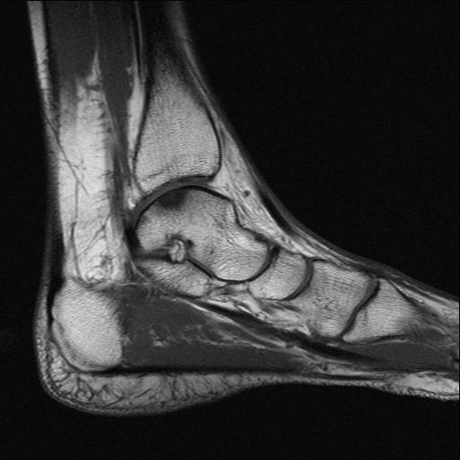 Мрт голеностопного сустава фото межпястные сустав