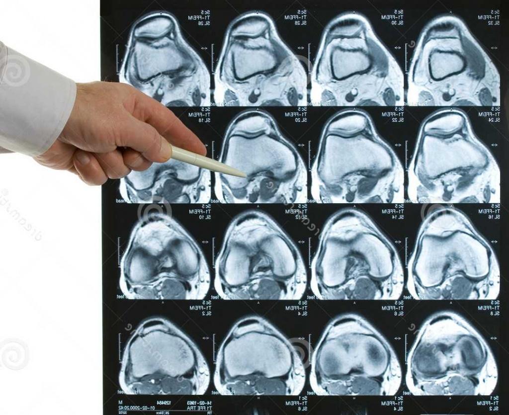 Магнитно резонансная томография коленного сустава перитонзиллярный абсцесс фарингит стрептококковой природы острый суставной ревматизм