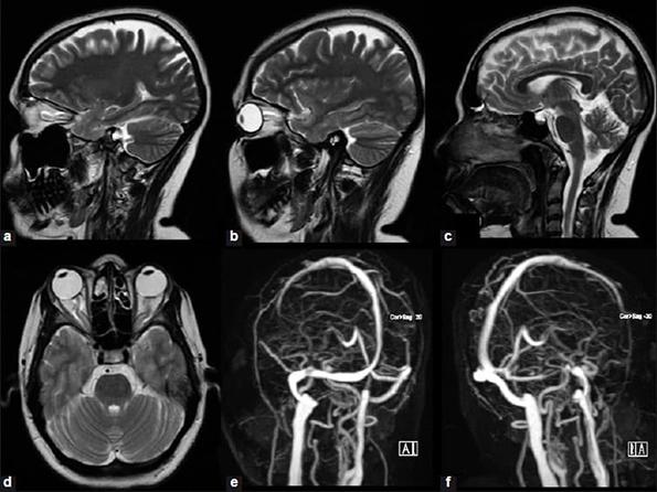 мозг с контрастом.jpg