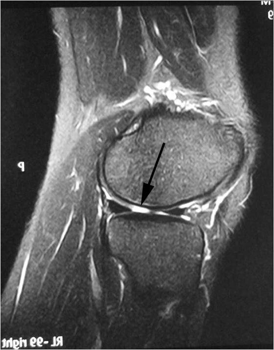 Мрт мениска коленного сустава упражнения для локтевых суставов