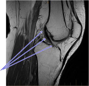 Мрт коленного сустава страховой мудры для лечения суставов