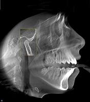 ЧЛО рентген.jpg