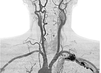 СШ рентген.jpg