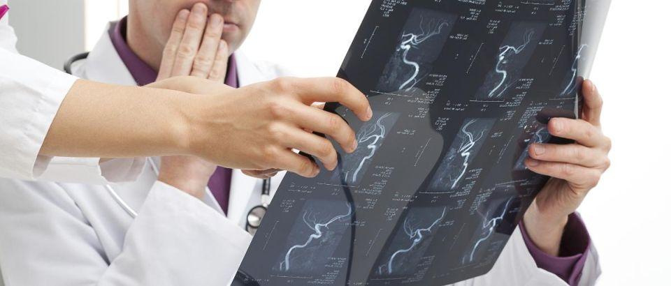 МРТ сосудов, ангиография