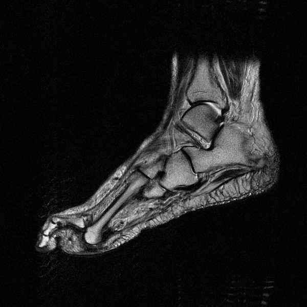 МРТ стопы - без контраста