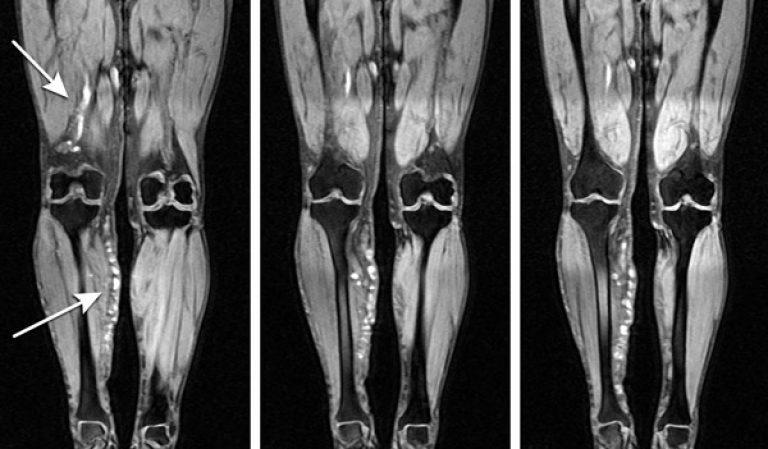 МРТ вен конечностей - без контраста