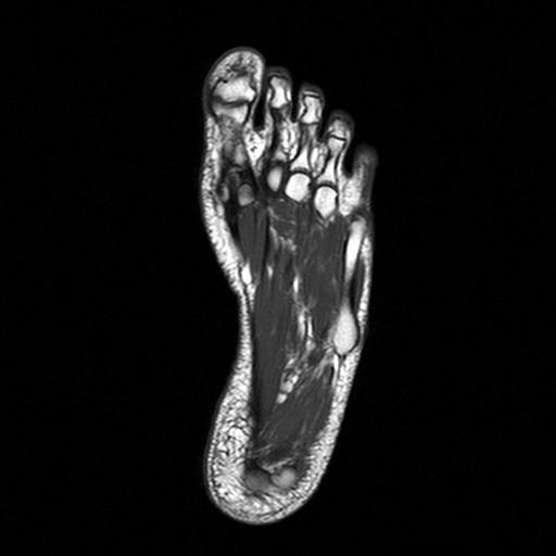МРТ стопы - с контрастом