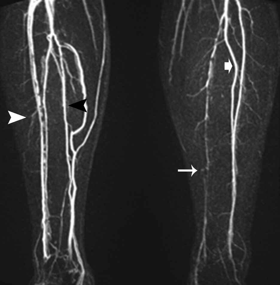 Атеросклероз вен нижних конечностей