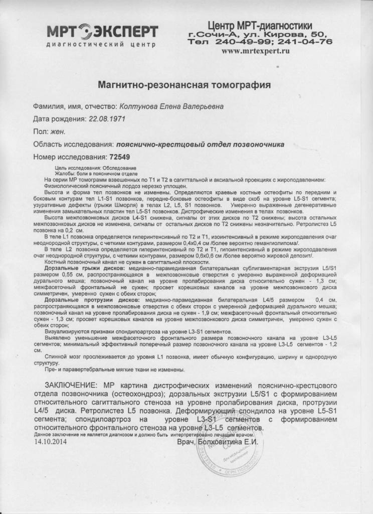 МРТ пояснично-крестцового отдела позвоночника - описание