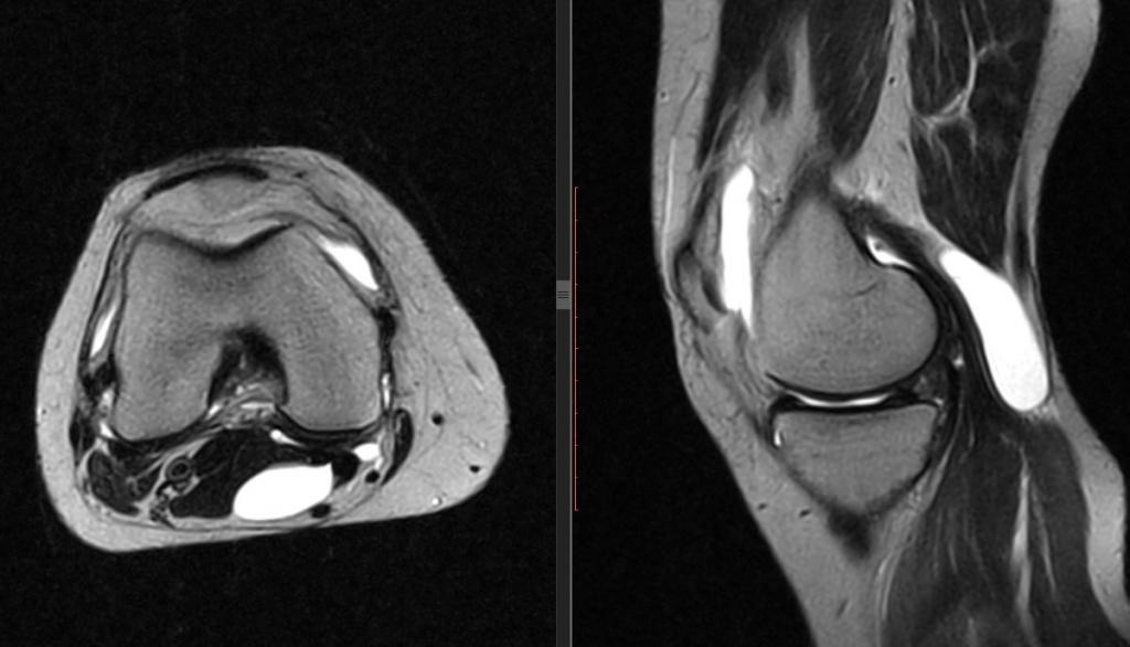 МРТ суставов - с контрастом