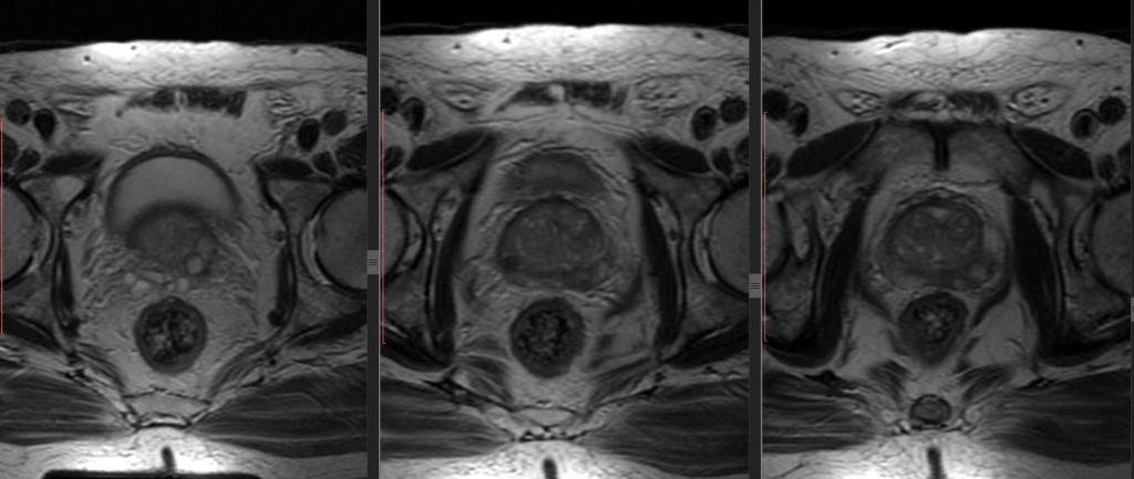 МРТ простаты - без контраста