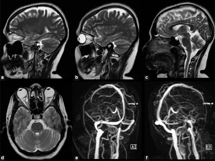 МРТ головного мозга с сосудами - с контрастом