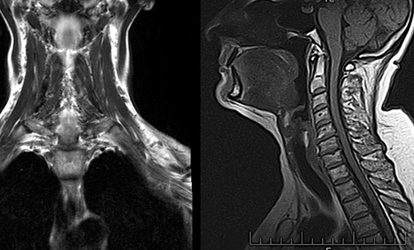 МРТ горла и гортани - с контрастом
