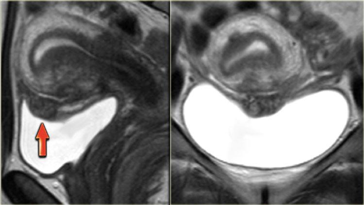МРТ мочевого пузыря - с контрастом