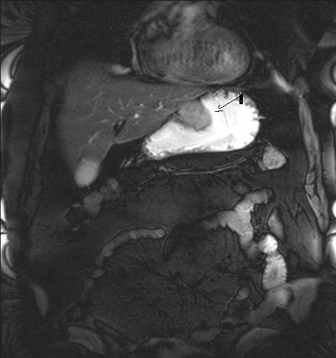 МРТ желудка - с контрастом