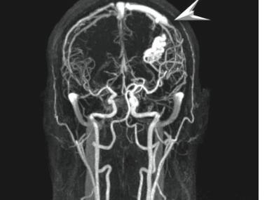 МРТ сосудистая аномалия