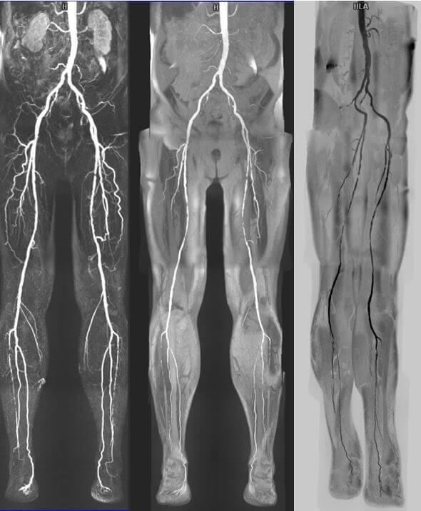 МРТ вен конечностей - с контрастом