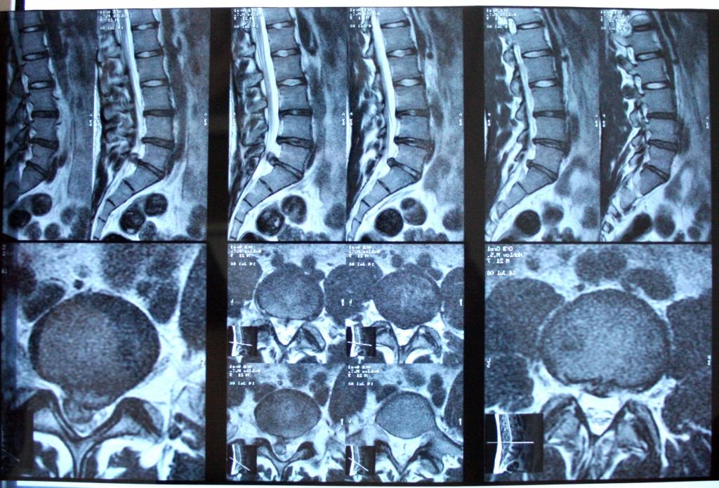 МРТ пояснично-крестцового отдела позвоночника - с контрастом