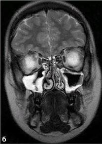 Опухоль в гайморовой пазухе