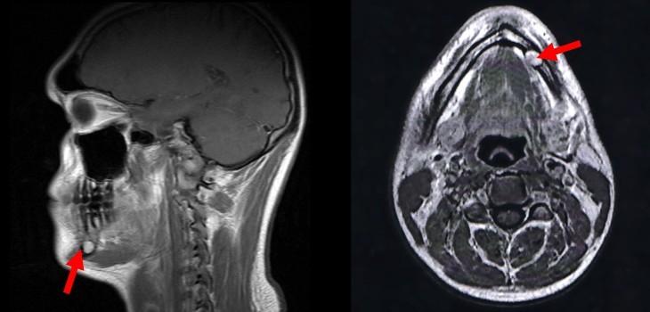 МРТ челюстно-лицевой области - с контрастом