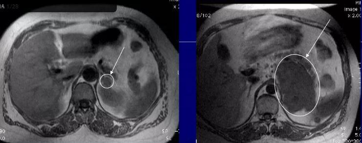 МРТ надпочечников - без контраста