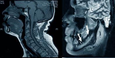 МРТ челюстно-лицевой области