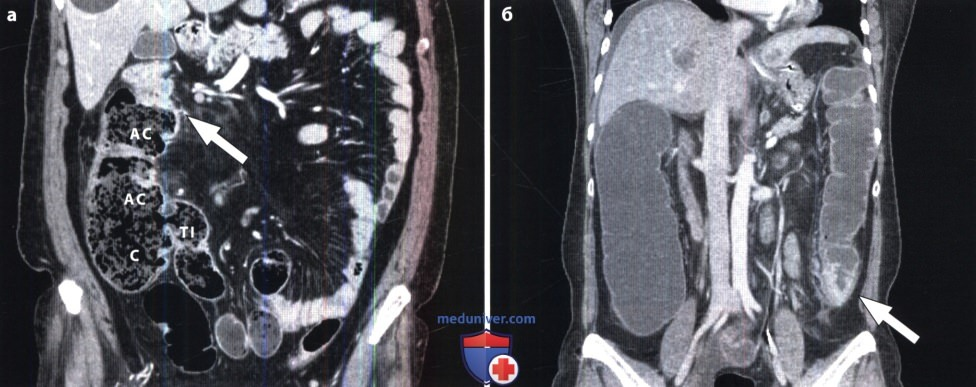 Рак толстого кишечника на МРТ и КТ