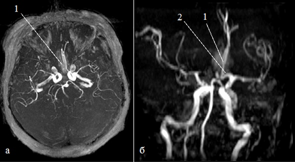 МРТ головного мозга с сосудами гипертензия и аневризма