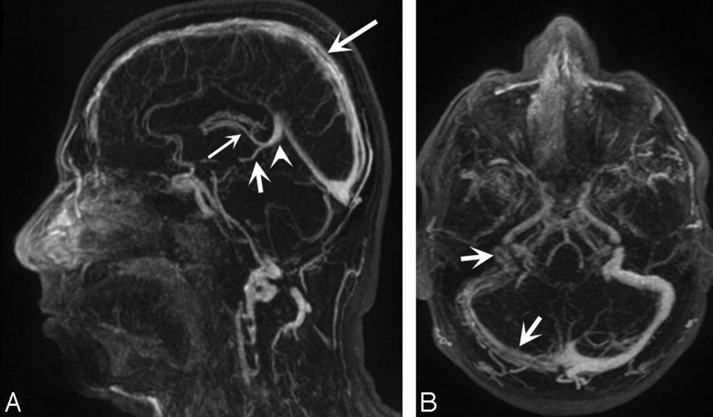 МРТ головного мозга с сосудами - без контраста