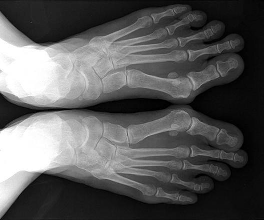 Стопа рентген.jpg