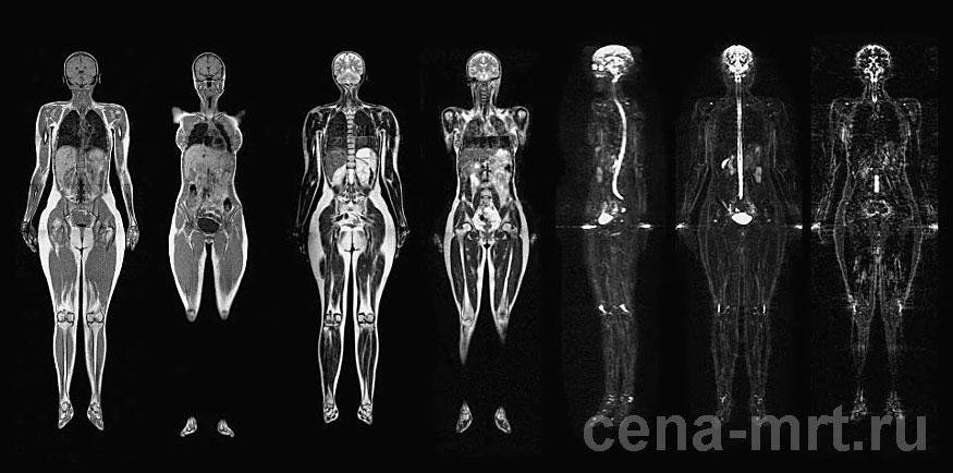 МРТ с контрастом.jpg