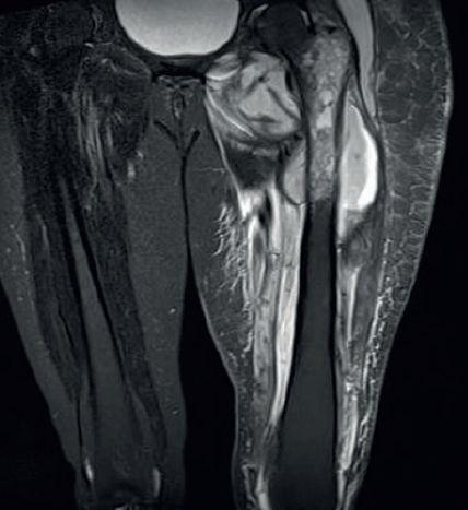 остеомиелит.jpg