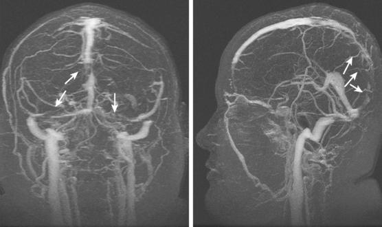 МРТ тромбоз церебральной вены