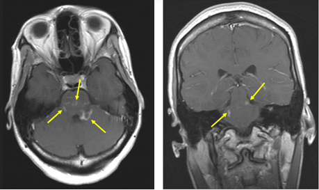 2Маленькие очаги нейросаркоидоза.png