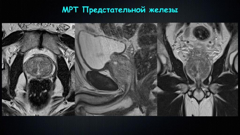 МРТ простаты.jpg