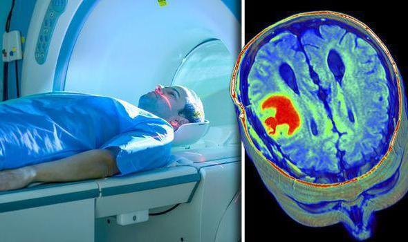 Прохождение мрт головного мозга