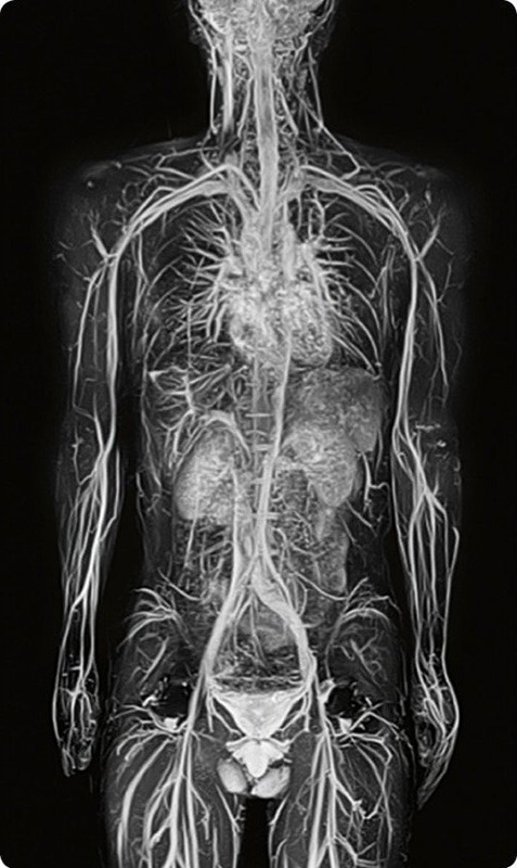 МРТ вен верхних конечностей и туловища