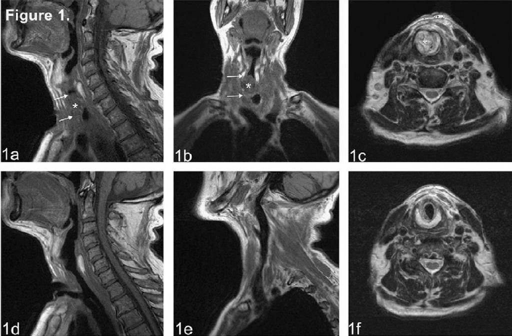 МРТ снимок горла и гортани1.jpg
