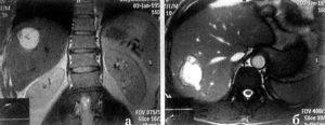14Киста печени МРТ.jpg