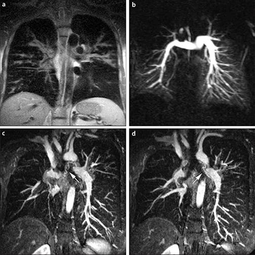 МРТ лёгких и бронхов