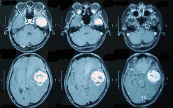Опухоль головного мозга при МРТ