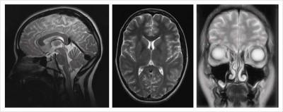 3Срезы головного мозга.jpg