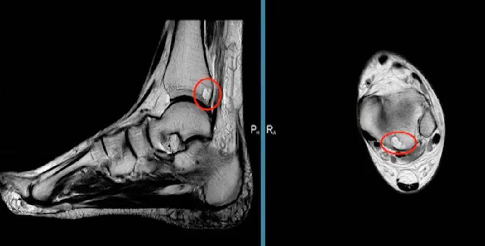 МРТ голеностопног сустава.jpg