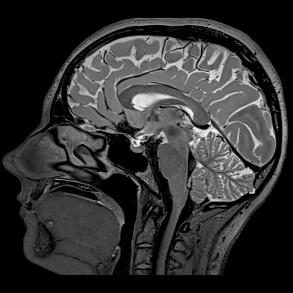 МРТ головного мозга.jpg