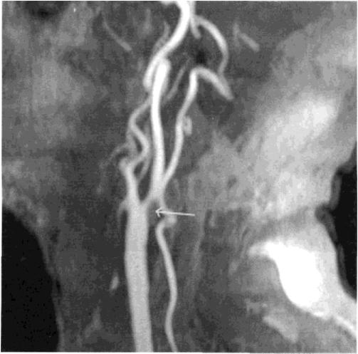 6Стеноз сонной артерии.png