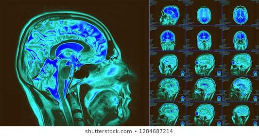 Срезы ткани головного мозга в трех проекциях
